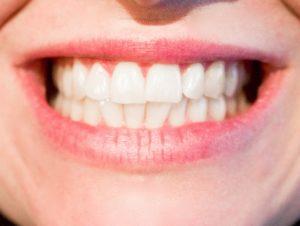 a che serve la pulizia dei denti